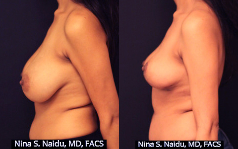 Breast Reduction Before & After - Dr. Naidu