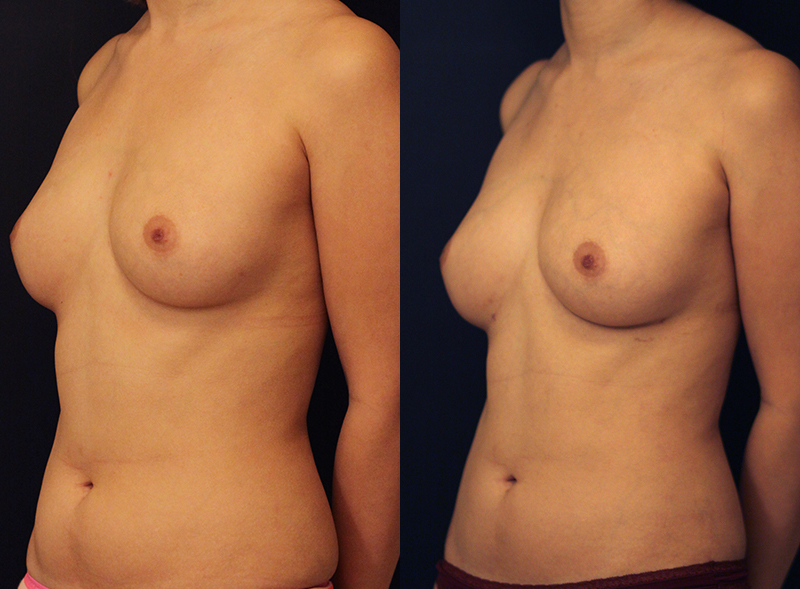 Fat Transfer Breast Augmentation Before & After Photo - Dr. Naidu