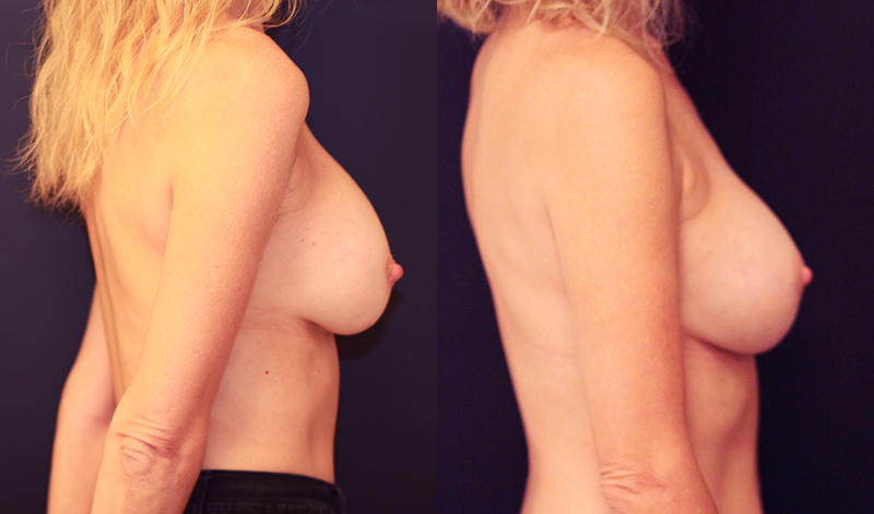 Breast Implant Revision Before & After - Dr. Naidu