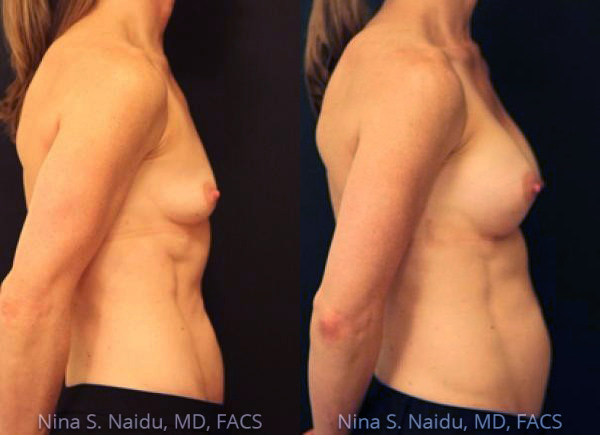 Breast Augmentation Before & After - Dr. Naidu