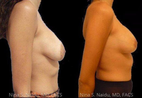 Tuberous Breast Correction Before & After - Dr. Naidu