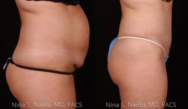 Tummy Tuck Before & After - Dr. Naidu