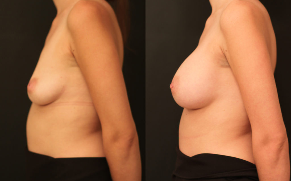Breast Augmentation Before & After Photo - Dr. Nina S. Naidu