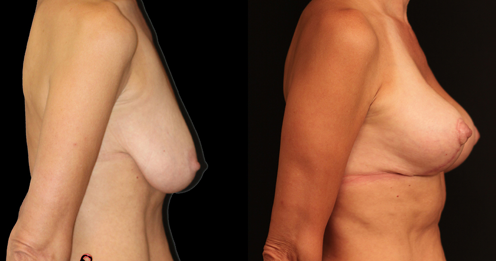 Breast Lift Before & After - Dr. Nina Naidu