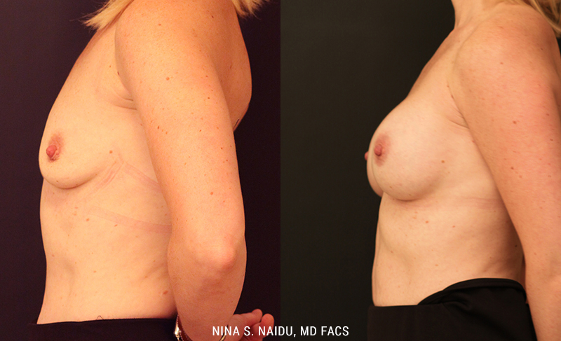 Breast Augmentation Before & After Photos - Dr. Naidu