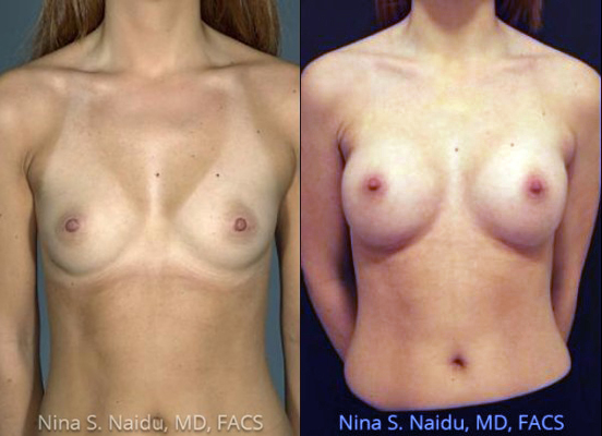 Breast Augmentation Before & After Photo - Dr. Naidu