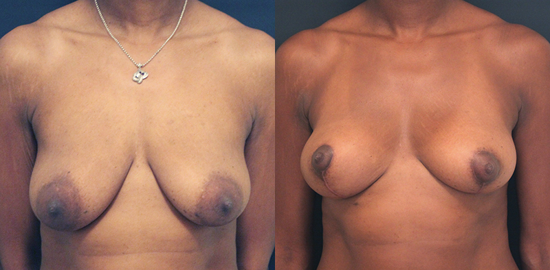 Breast Lift Before & After - Dr. Naidu