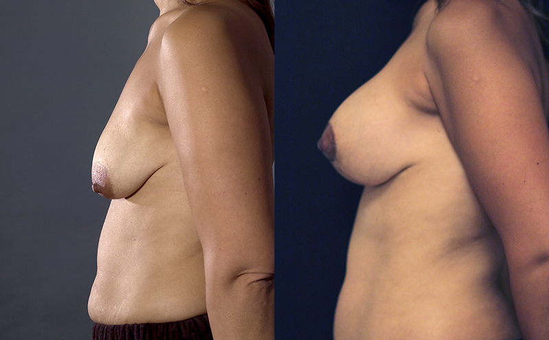 Breast Lift with Augmentation Before & After - Dr. Naidu