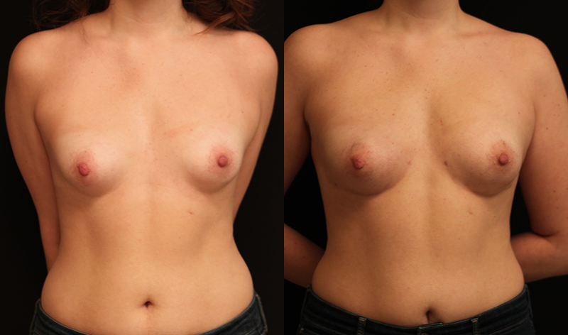 Fat Transfer Breast Augmentation Before & After Photo - Dr. Nina S. Naidu