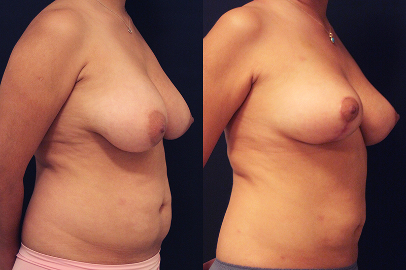 Liposuction Before & After Photo - Dr. Naidu