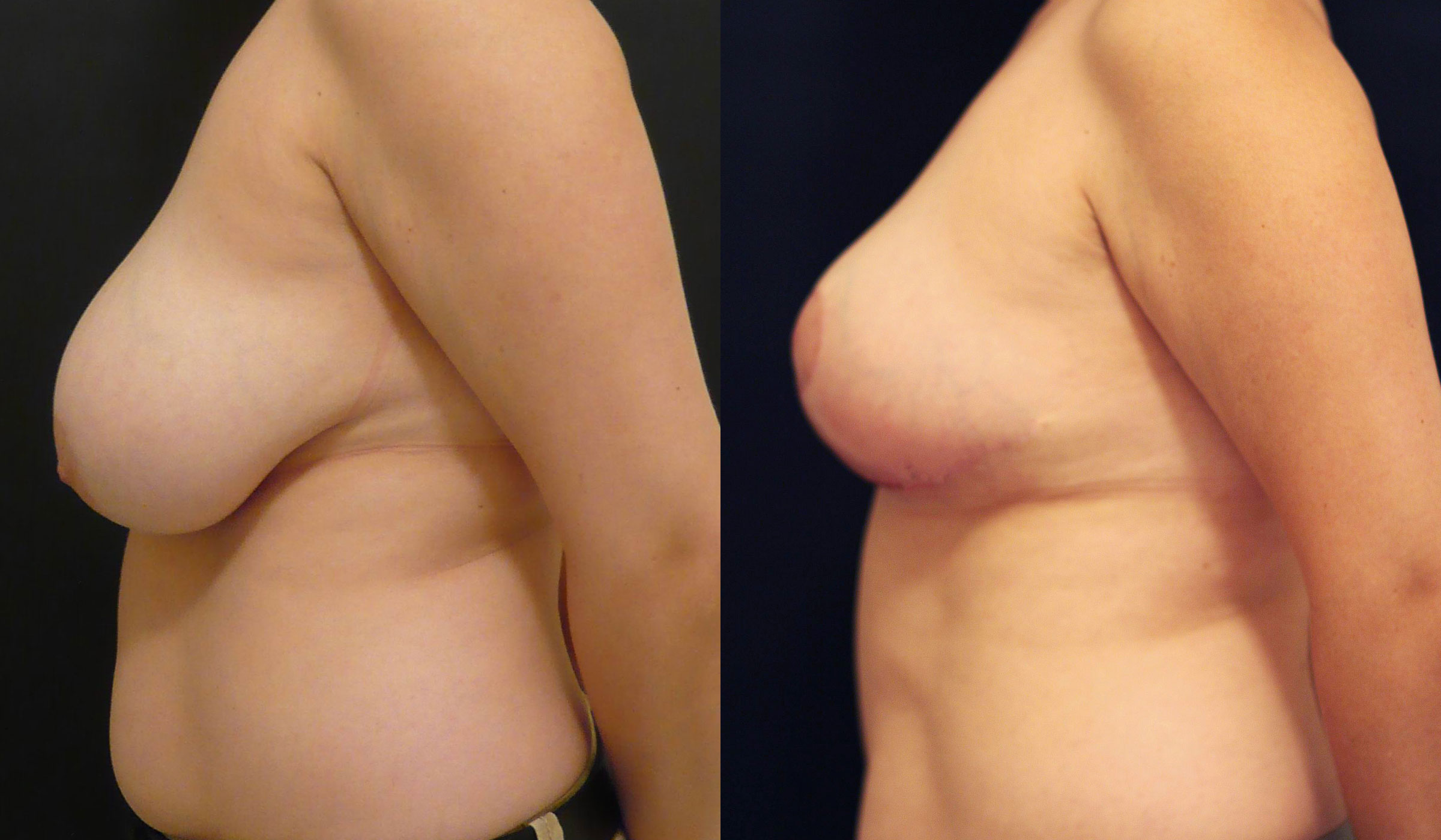Breast Reduction Before & After Photo - Dr. Naidu