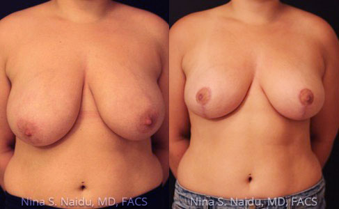 Breast Reduction Before & After - Dr. Naidu""