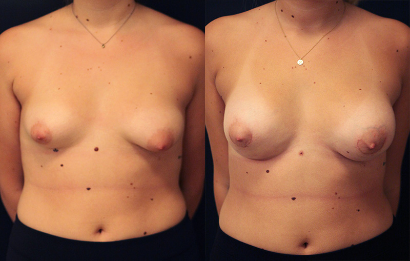 Tuberous Breast Correction Before & After Photo - Dr. Naidu