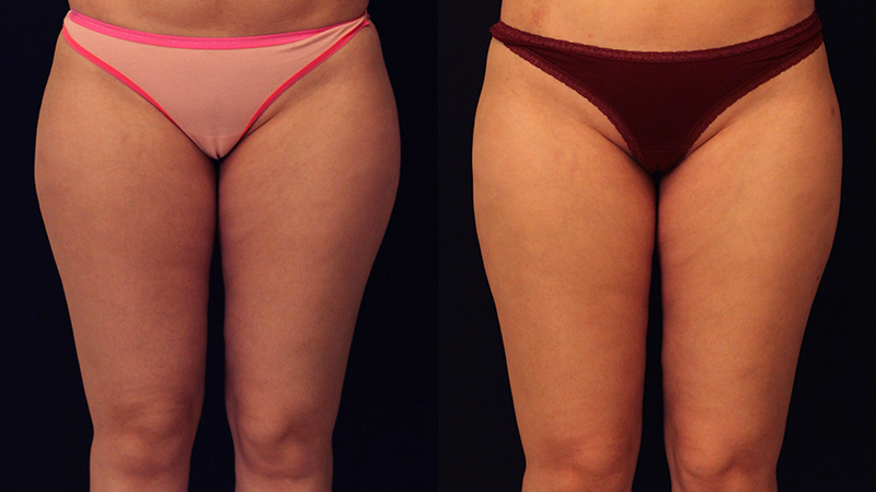 Liposuction Before & After - Dr. Naidu